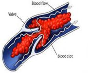 bkpam2200473_deep-vein-thrombosis copy